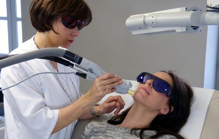 Epilation laser réalisée par le Dr Grolleau à Toulouse
