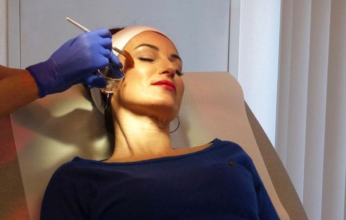 Peelings anti-rides Docteur Grolleau dermatologue